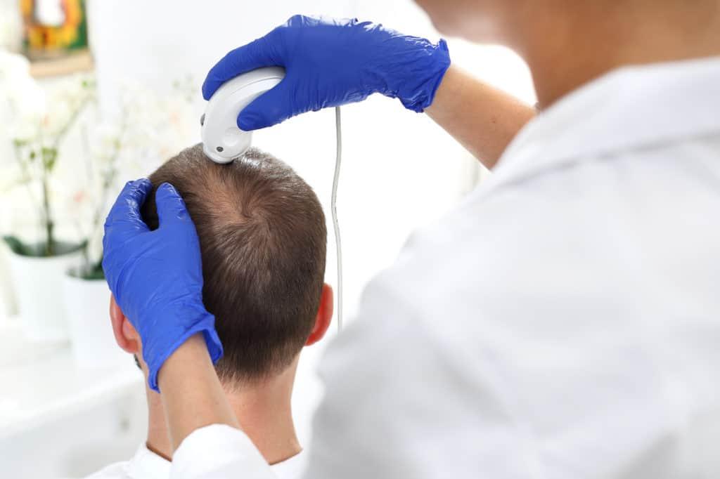 Leczenie wypadania włosów - RosaMed Clinic