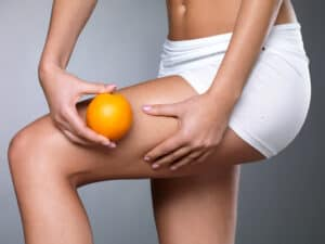 Jak się pozbyć cellulitu - modelowanie sylwetki | RosaMed Clinic