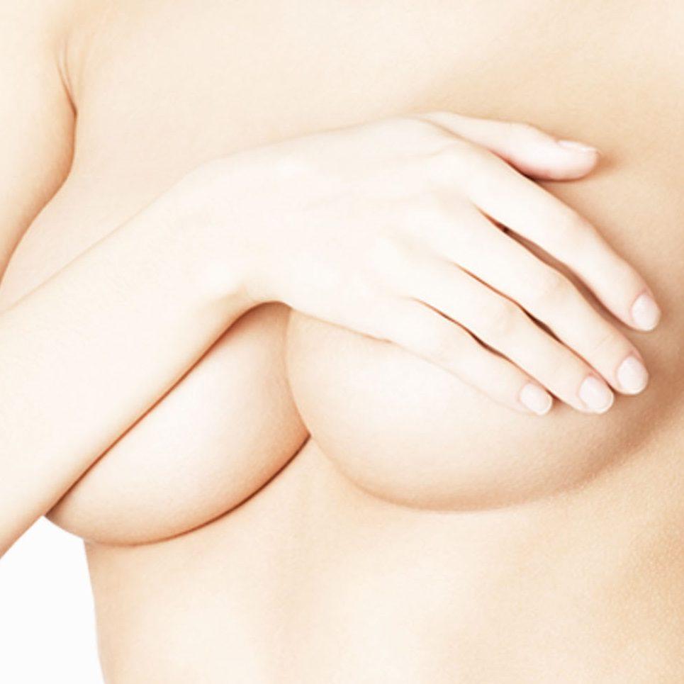 blizna-po-powiekszaniu-piersi-dermaestetic