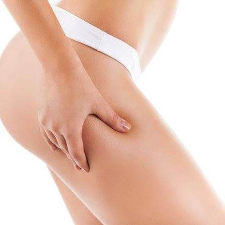 gf-fDmq-iYyz-e5xd_kobieta-cellulit-odchudzanie-dieta-uroda-pielegnacja-jedrne-cialo-664x442-nocrop
